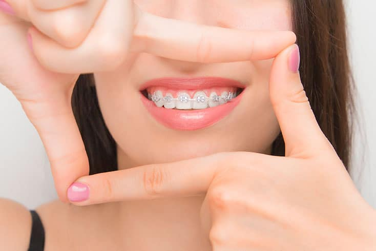 How-to-take-care-of-braces-01