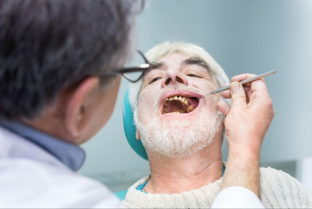 Types of dental caries and treatments