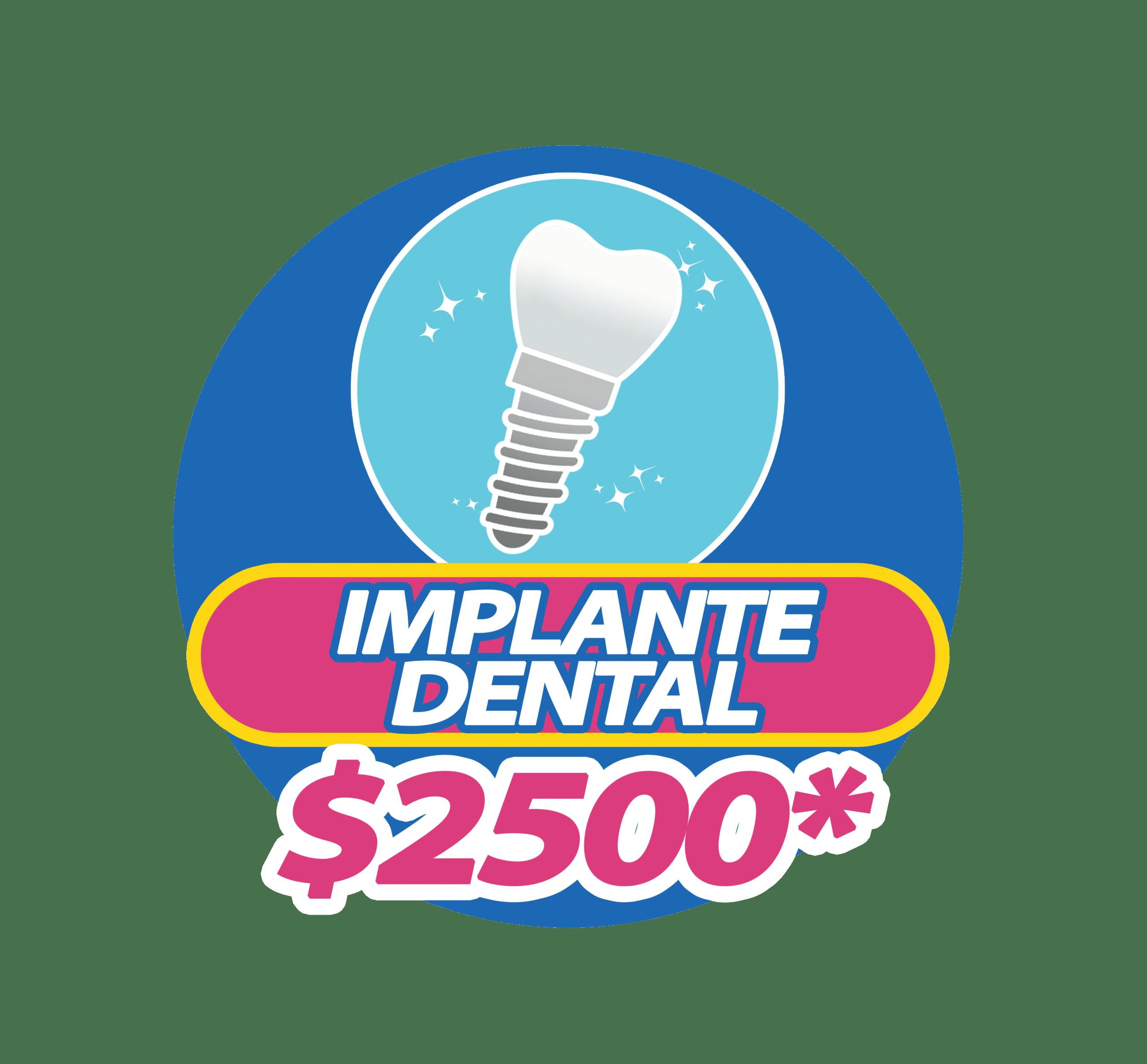 Implantes dentales en Somos Dental