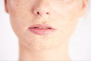 Mouth cancer symptoms