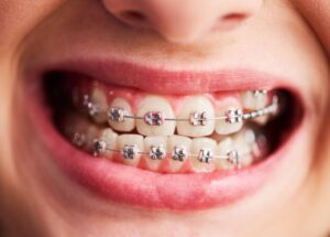 When braces get wrong?