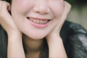Get to know the different types of braces available