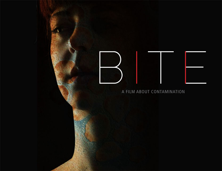Photo of bite-poster