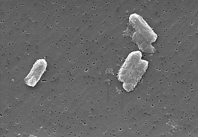 Photo of Drug-resistant 'superbug' scare in Los Angeles following several infections