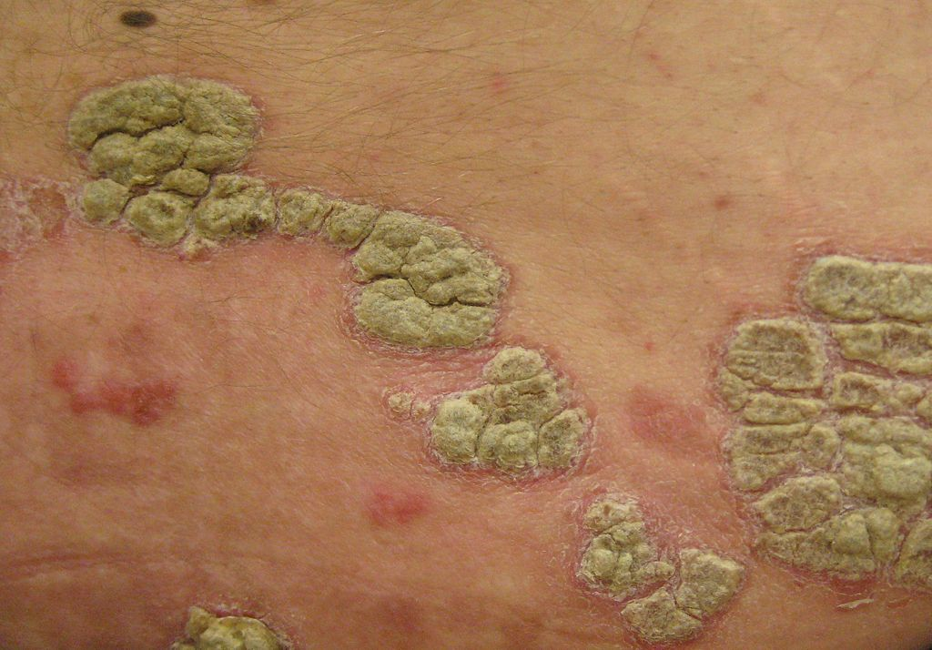 Photo of Austrian researchers successfully eliminate psoriasis symptoms