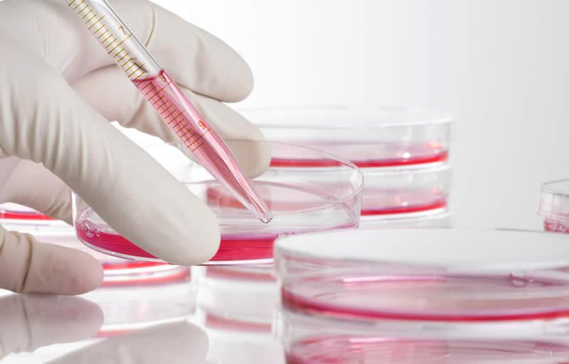 Osteoarthritis-stem-cells