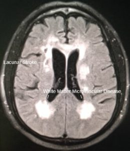 cadasil-migraine