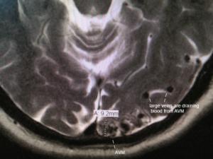 Артериовенозная мальформация мозга