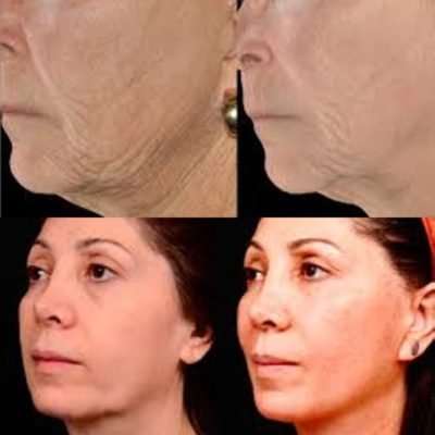 Before and after beauty and medical treatments.