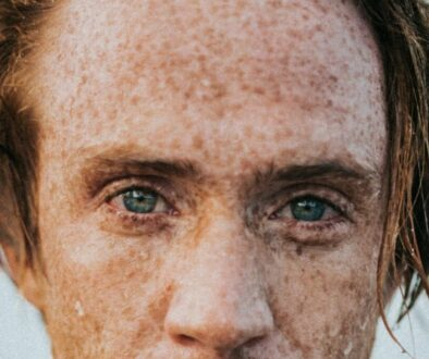 A man's face covered in freckles.