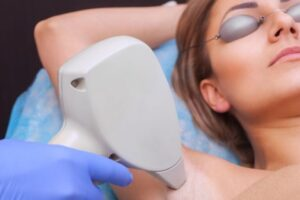 The cosmetologist does the laser hair removal procedure