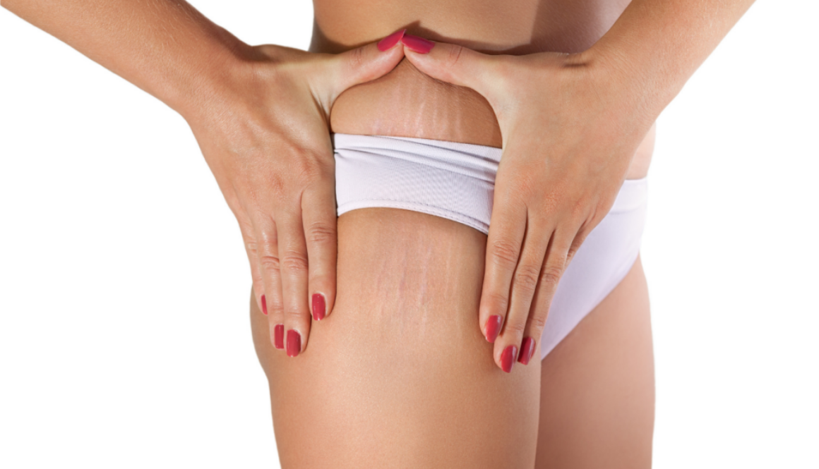 Stretch mark of a woman first appearance and planning to do microdermabrasion