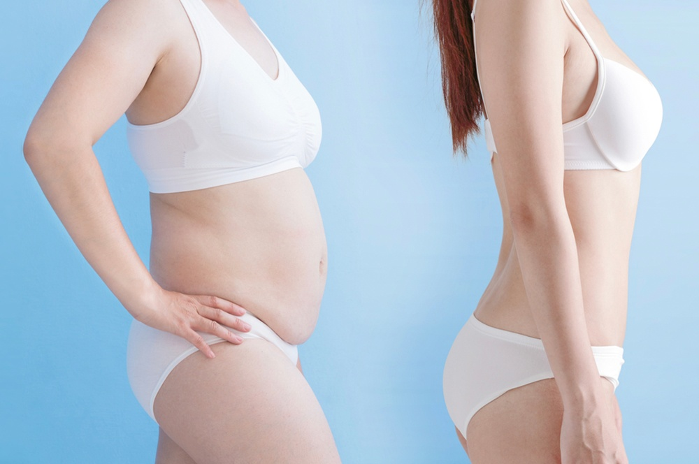 Tummy Tuck – Cosmetic Surgery of New York