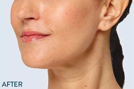 Botox & Fillers – Cosmetic Surgery of New York