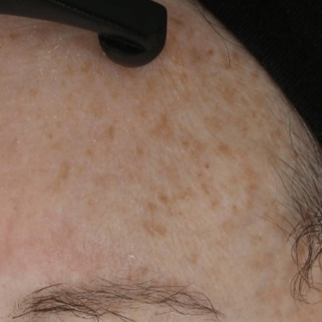 "Age spot being treated with 'PhytoSpherix' ('phytoglycogen"")"