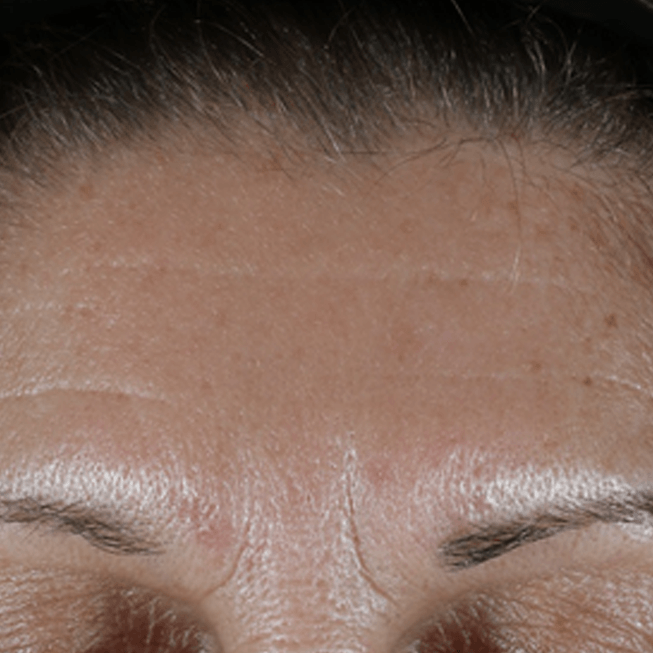 "Wrinkles being treated with 'PhytoSpherix' ('phytoglycogen"")"