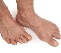 Pictures of patients foot suffering from Arthritis.