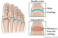 Illustration of patients foot suffering from Arthritis