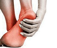 Picture of patients foot suffering from Heal Pain clutching heel and ankle