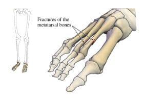 photoAlbum-fracture