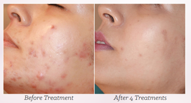 Mesotherapy and Microneedling - DoctorBeauty ca