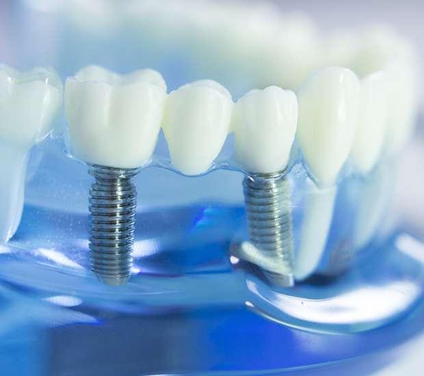 Implant Restoration