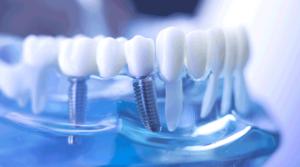 dental implants Murrieta - one day dental implants near me