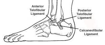Weiss Foot & Ankle can help with Ankle Sprain