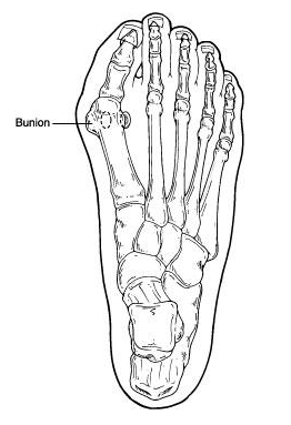 What causes a bunion, and how is it treated?
