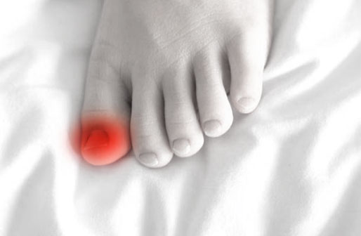 Foot Care Treatment for Ingrown Toenails
