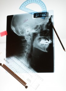 Curves of the spine are measured with precision by Dr Adam Fields