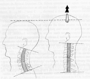 Loss of cervical stretches the spinal cord. Restore your cervical curve with Pettibon Chiropractic
