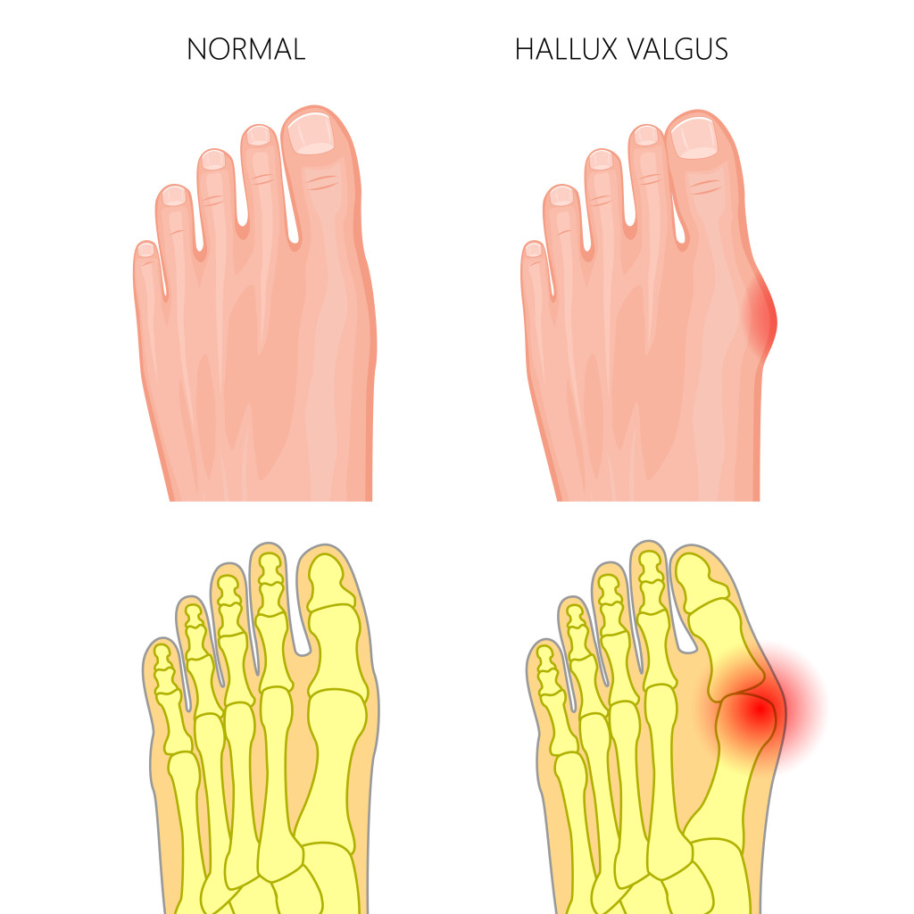 Bunions can be helped with ESWT