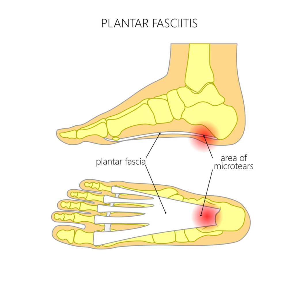 ESWT is the #1 FDA treatment for pantar fasciitis