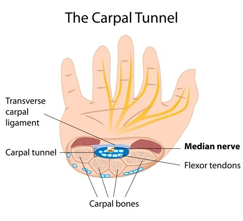 The carpal tunnel as it relates to ESWT