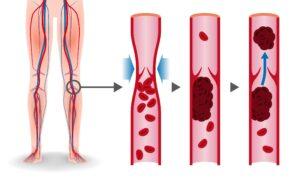 deep-vein-thrombosis