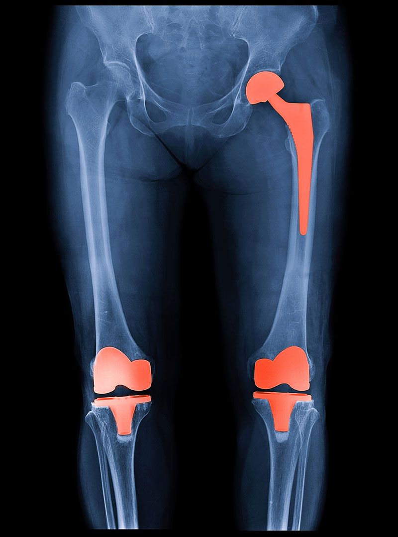 x-ray of a practical services patient of outpatient orthopedics