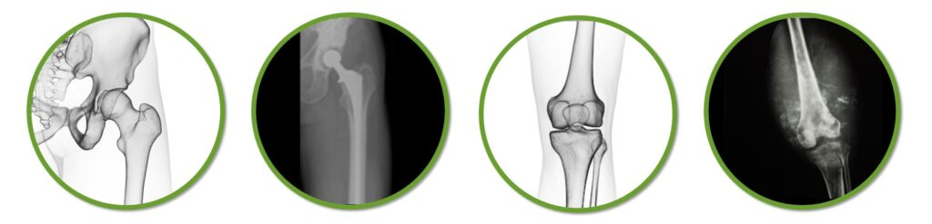 Services for musculoskeletal malignant and benign conditions incude tumor, osteosarcoma, Ewings sarcoma, mass, lump, soft tissue sarcoma, soft tissue mass, bone cancer, metastatic bone disease, lymphoma of bone, arthroplasty, joint replacement, and fracture.