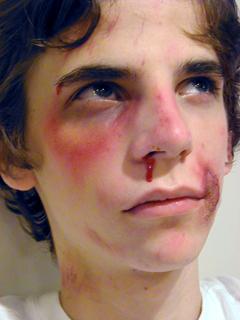Severe Trauma Makeup Application by Tim Vittetoe, ImpaQt FX