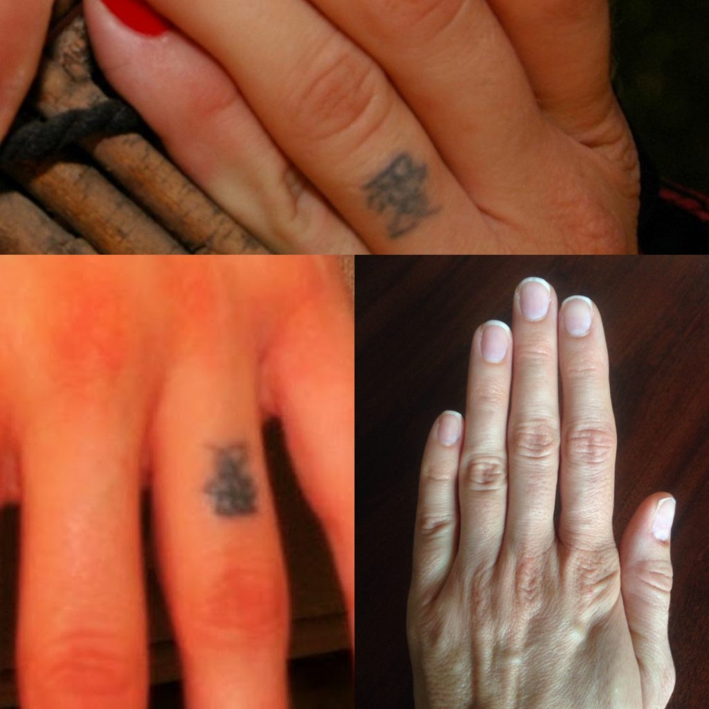 why people want tattoos removed