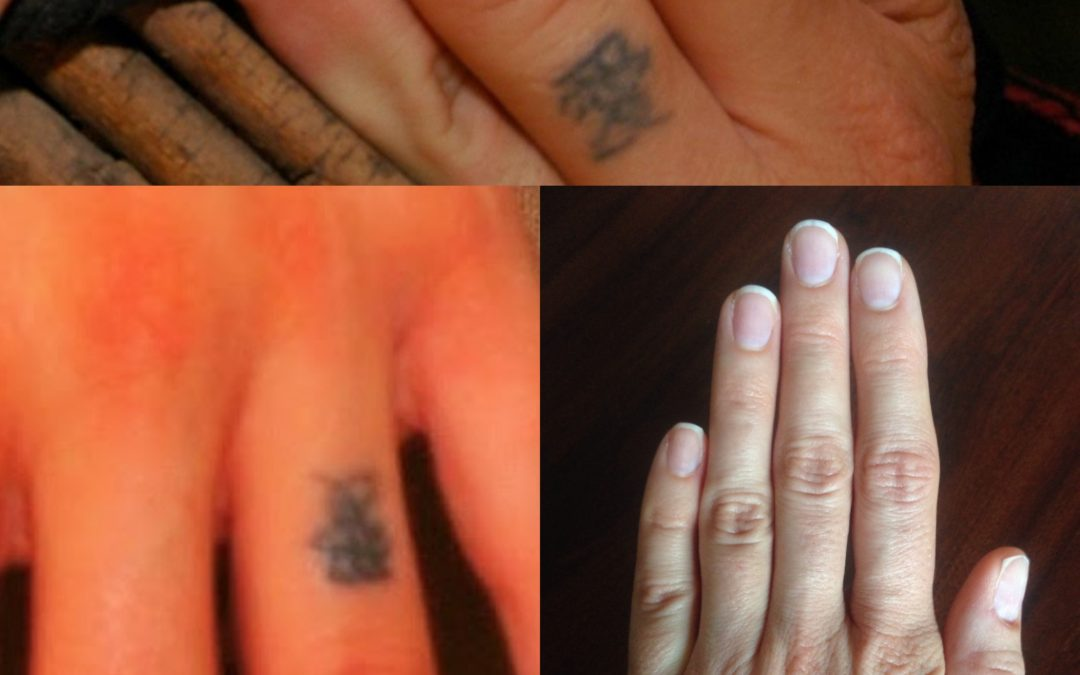Why Does tattoo removal hurt?