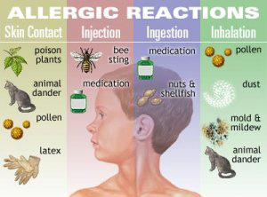 Holistic_Treatment_for_Allergies