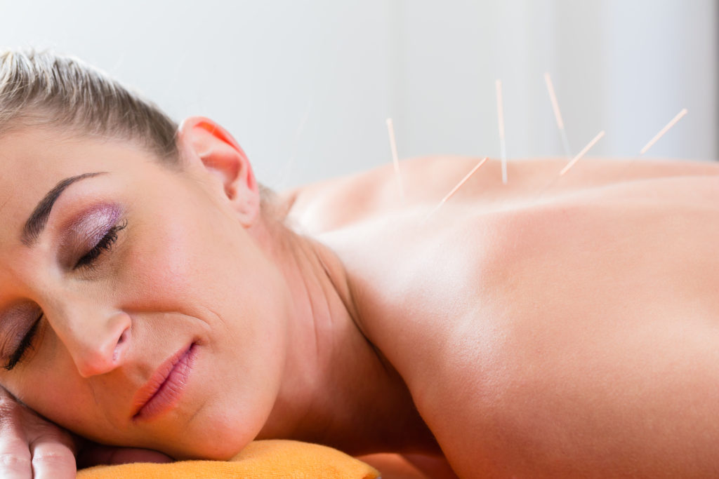 Using acupuncture therapy to stay fit over the age of 50
