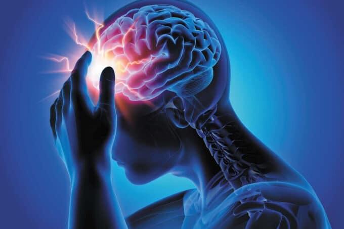 Headache Management
