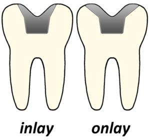 inlayonlay