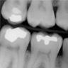 digital x rays (low exposure)