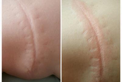 Scar Treatment - Dolphin
