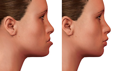 Chesapeake Oral Surgery & Dental Implants