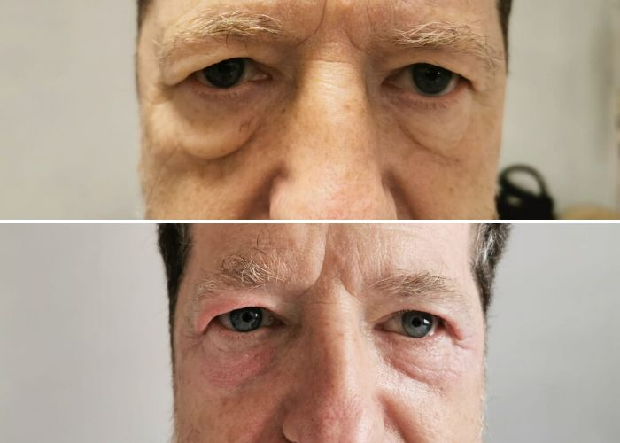 Before and after eye lift at Royal Aesthetic Center Milford massachusetts Medical Spa