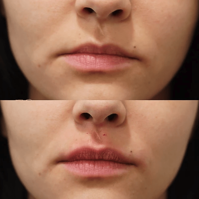 Before and after image at Royal Aesthetic Center Milford massachusetts Medical Spa